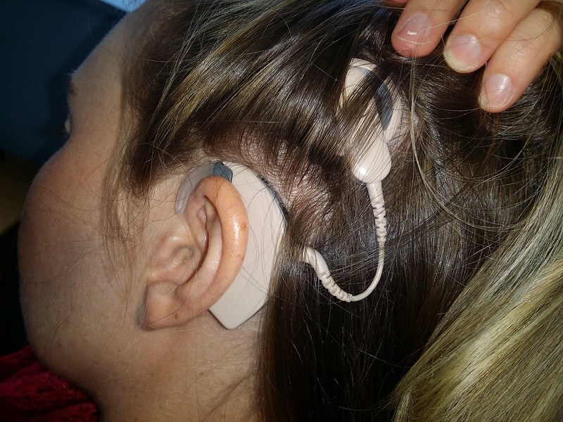 Cochlear Implant On Girl