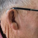 Receiver in the Canal (RIC) Hearing Aids – The Most Popular Hearing Aid